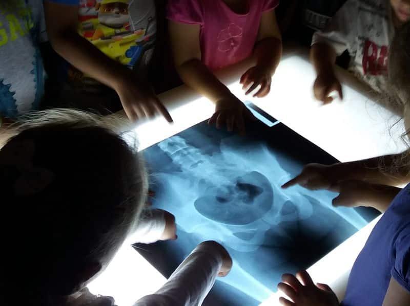 Un grupo de niños observa una radiografía en una mesa de luz en Infantil.